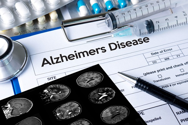 Further research is needed to determine the potential of TMS for Alzheimer's treatment